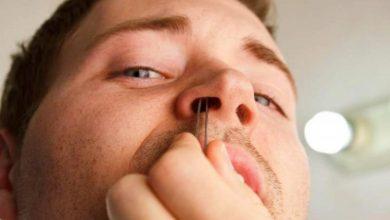 Photo of رجل يكتشف سناً نما في أنفه 20 عاماً