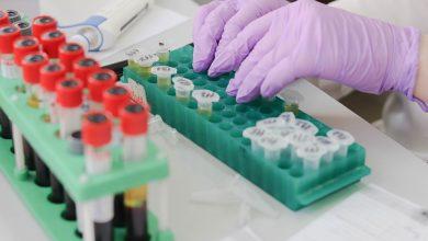 Photo of المعهد البيولوجي في اسرائيل- إحراز تقدم كبير لايجاد علاج لفيروس كورونا
