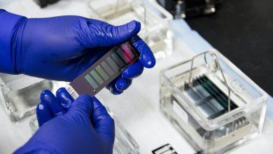 "Photo of أخيرا: دراسة تحدد العلاقة بين فصيلة الدم و""أعراض كورونا"""