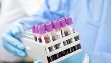 Photo of الطيبة: 11 اصابة جديدة بفيروس كورونا – العدد الاجمالي 72 حالة