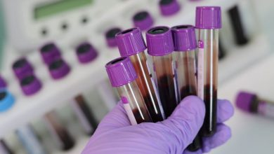 Photo of ارتفاع عدد الإصابات بفيروس كورونا في الطيبة, الطيرة, قلنسوة
