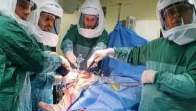 صورة تحت إشراف الدكتور مصطفى ياسين من قلنسوة اجراء اول عملية تغيير مفصل الركبة ، بمساعدة الروبوت